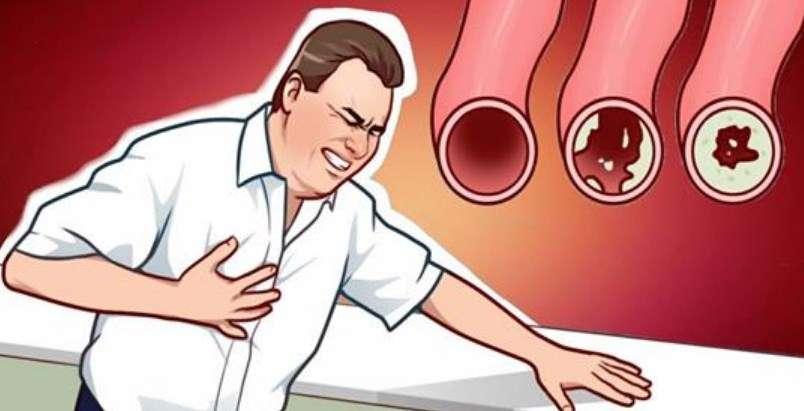 Ushqimet që pastrojnë arterien dhe iu mbajnë larg sulmeve të zemrës