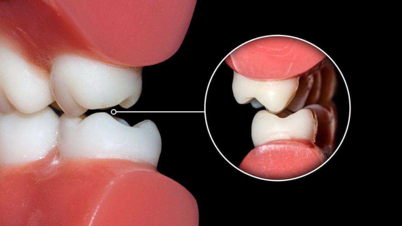 Shtrëngimi i pavullnetshëm i dhëmbëve